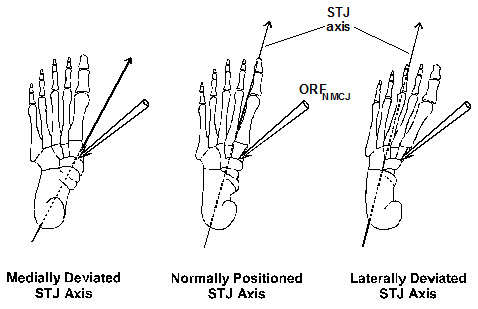 Subtalar joint axis location and arch irritation from foot orthotics ...